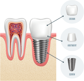 Dental-Implant United Dental Care