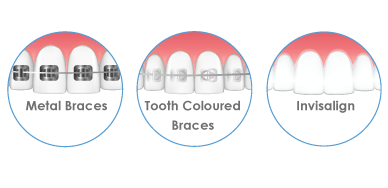 Orthodontics United Dental Clinic