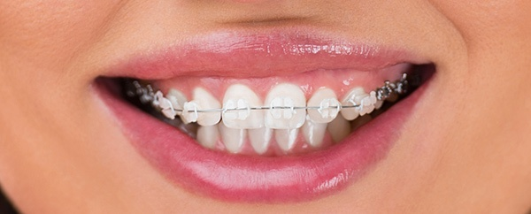 Tooth Coloured Braces