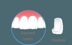 Veneers United Dental Clinic