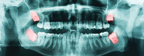 wisdom tooth xray highlighting teeth